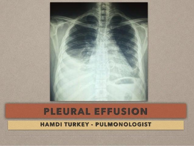 PLEURAL EFFUSION HAMDI TURKEY - PULMONOLOGIST