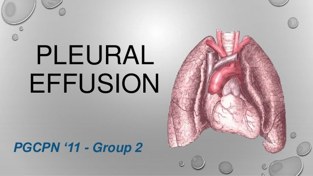 LCP Pleural Effusion Group Report March 12 2014