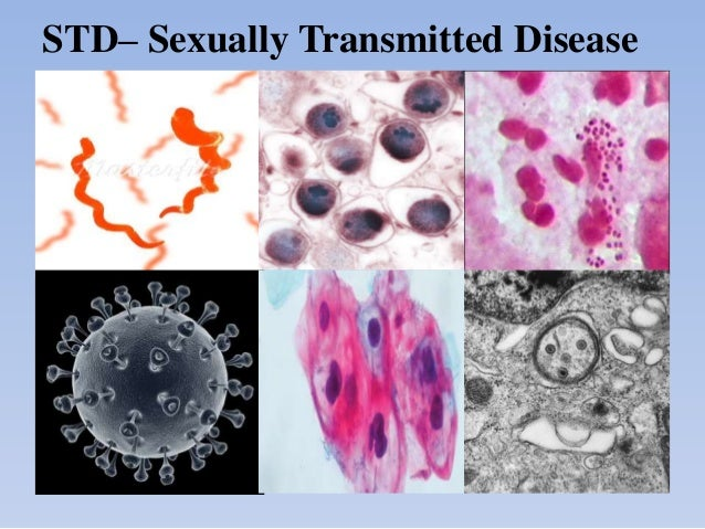 STD– Sexually Transmitted Disease