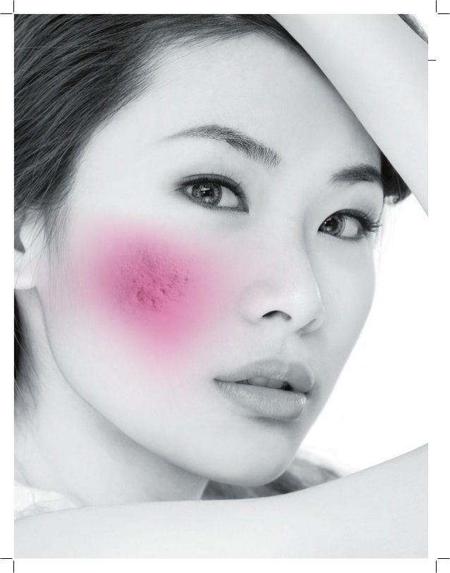 Radiesse study on atrophic acne scarring
