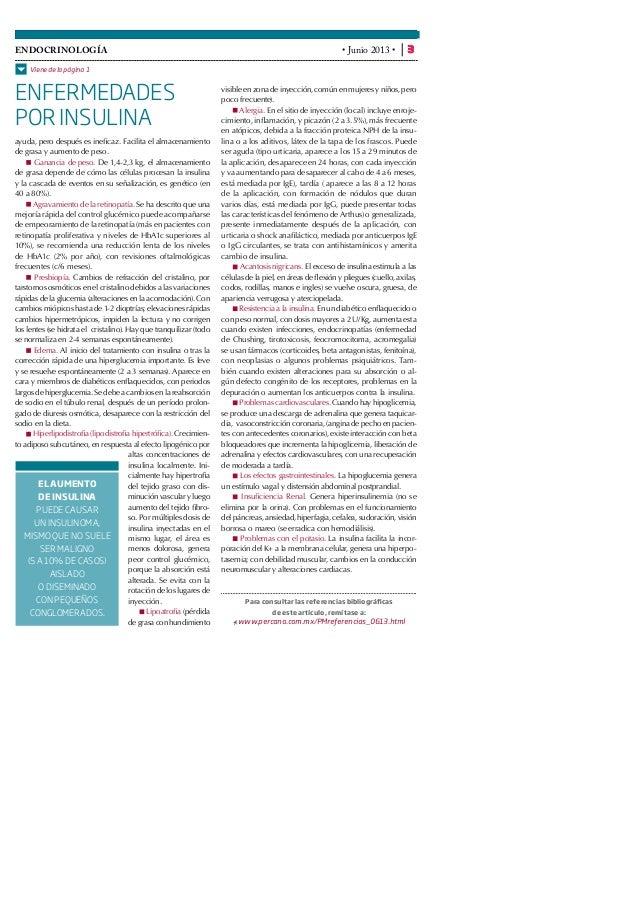 Clobetasol Propionate Topical Solution Coupon