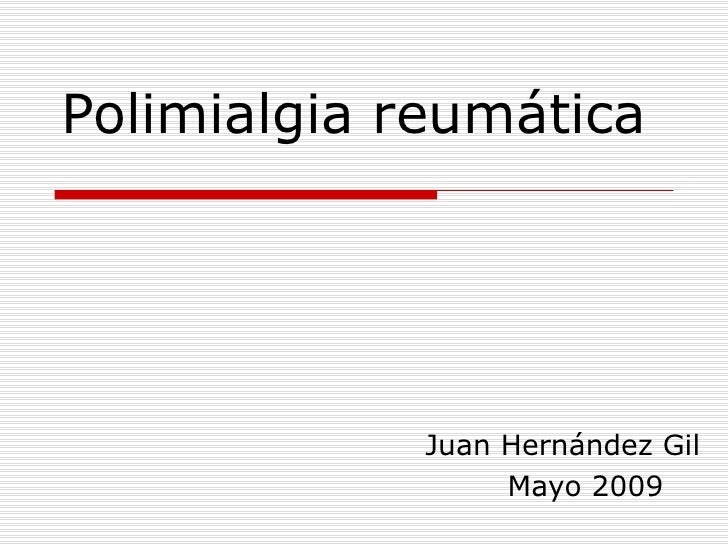 Polimialgia reumática Juan Hernández Gil Mayo 2009