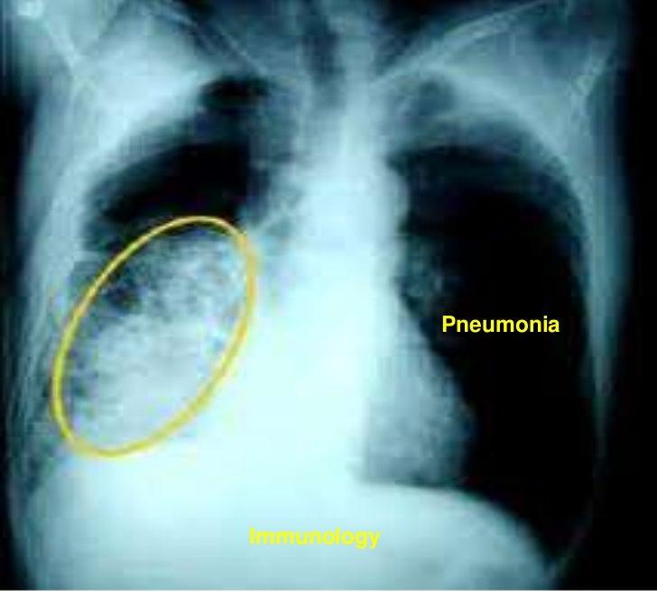 PneumoniaImmunology