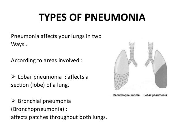 New breath test for pneumonia