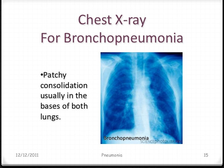 Pneumonia Diagnosis and treatment