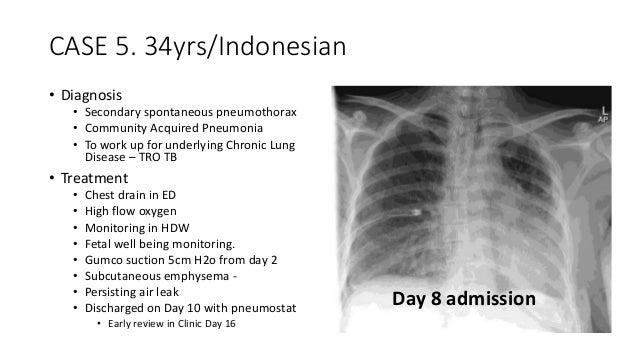 pneumothorax case study 소개글 spontaneous pneumothorax case study(자연기흉 케이스스터디) 입니다.