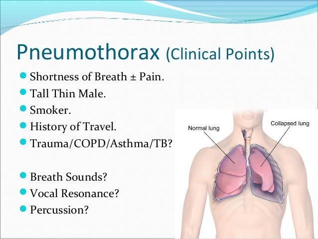 spontaneous pneumothorax Patients who have had a spontaneous pneumothorax and whose occupation places them at risk for a second episode or places them in a situation where medical intervention is not readily accessible should be considered for surgery therefore divers, pilots, submarine personnel, and those that work or live in the wilderness or space are.