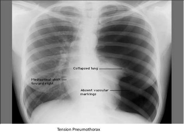 Perforated Eardrum Tympanic Membrane Rupture as well Stock Illustration Scuba Diver Under Water Fishes Flat Design Tropical Dive Gear Equipment Mask Flippers Wetsuit Underwater Active Image77349612 further Equiprecall likewise Something About Pneumothorax additionally 74. on scuba pressure