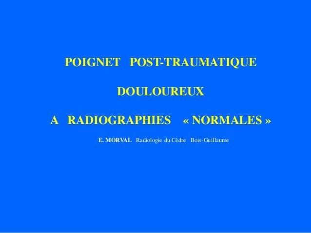 POIGNET POST-TRAUMATIQUE DOULOUREUX A RADIOGRAPHIES « NORMALES » E. MORVAL Radiologie du Cèdre Bois-Guillaume