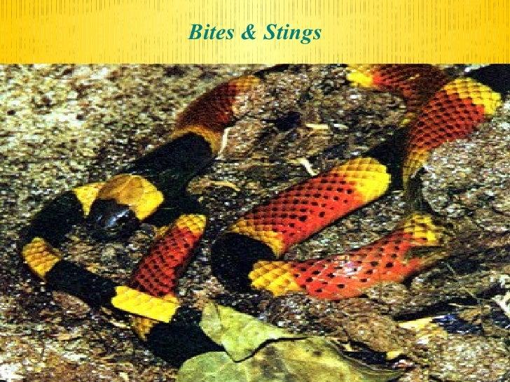 Poisoning Bites Stings Lec.