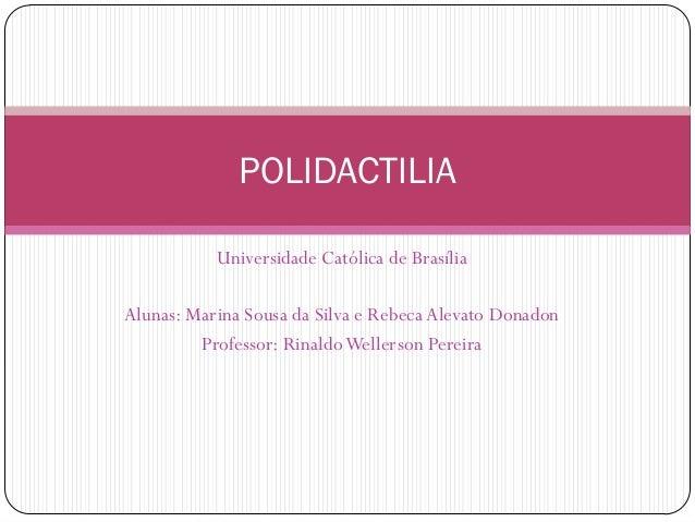 Universidade Católica de Brasília Alunas: Marina Sousa da Silva e Rebeca Alevato Donadon Professor: RinaldoWellerson Perei...