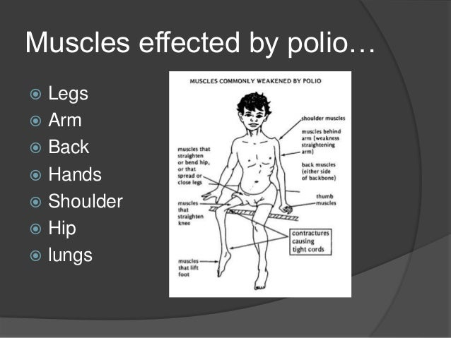 How To Relieve Sciatic Nerve Pain additionally Lower Back Pain Symptom Checker likewise Lower Back Pain additionally Pulled Muscles Torn Muscles Muscle Strains also Chest Muscle Strain. on shoulder arm muscle spasms