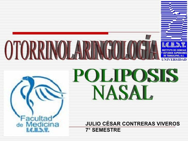 OTORRINOLARINGOLOGÍA POLIPOSIS NASAL JULIO CÉSAR CONTRERAS VIVEROS 7° SEMESTRE