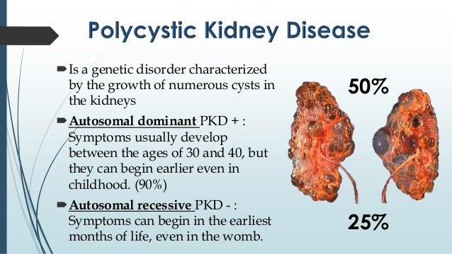 Polycystic Kidney Disease 28058014