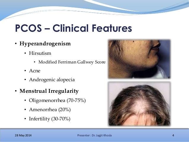 Polycystic ovary syndrome - Wikipedia
