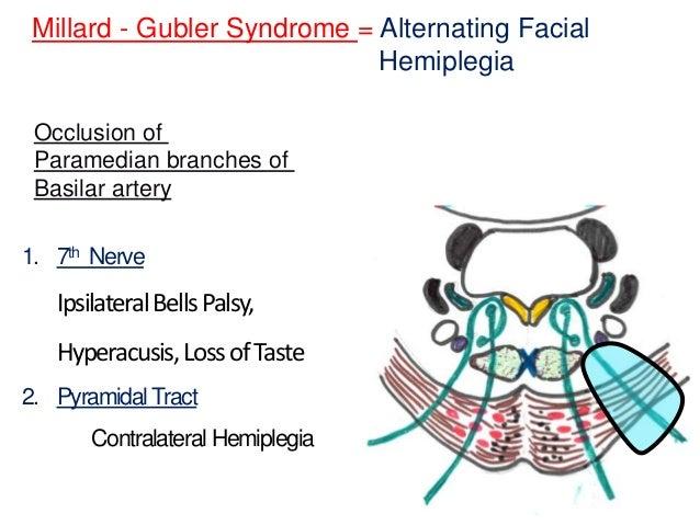 Vestibular Schwannoma Acoustic Neuroma and