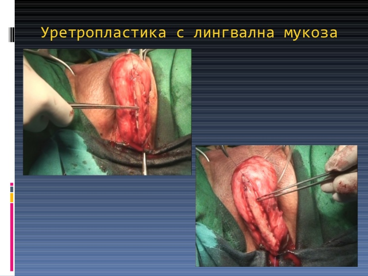 Уретропластика фото