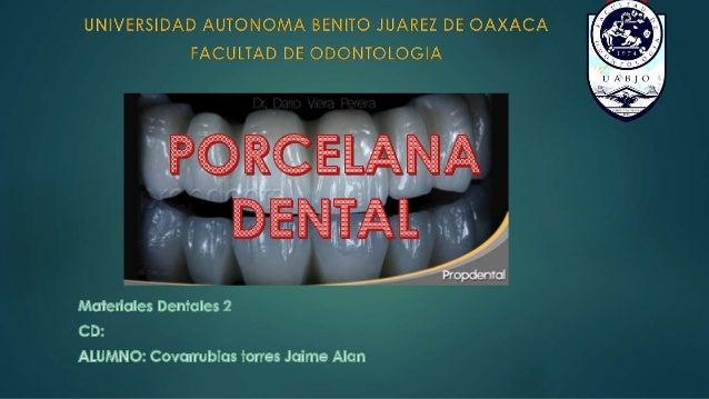  La porcelana dental se desarrollo a partir de cerámicas finas tradicionales. Aprovechando los atributos de este material...