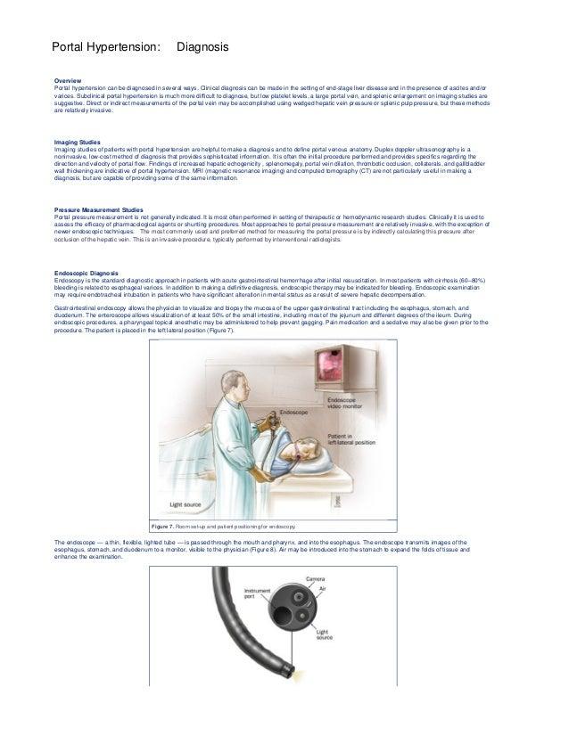 Portal Hypertension Caput Medusae - More information - Djekova