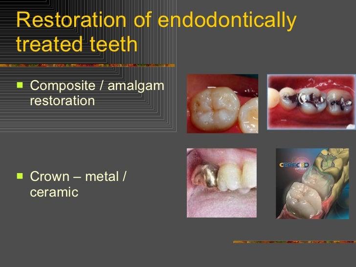 Restoration of endodontically treated teeth <ul><li>Composite / amalgam restoration </li></ul><ul><li>Crown – metal / cera...