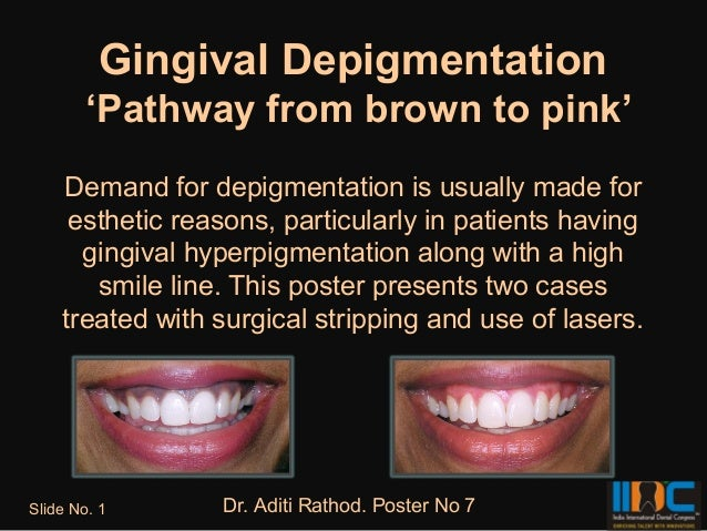 Gingival Depigmentation        'Pathway from brown to pink'    Demand for depigmentation is usually made for     esthetic ...