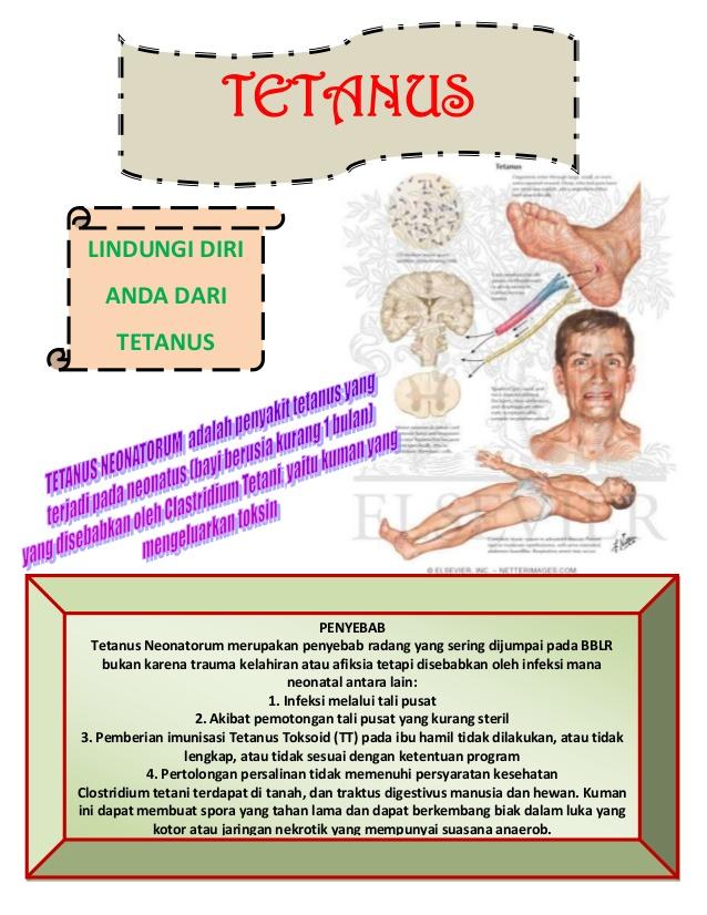 Poster tetanus