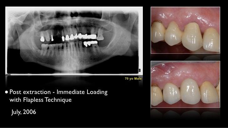 Immediate post estractive Implant