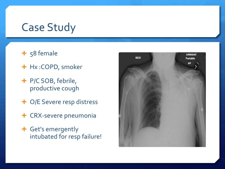 community acquired pneumonia case study introduction Community-acquired pneumonia - etiology, pathophysiology, symptoms, signs, diagnosis & prognosis from the msd manuals - medical professional version diagnosis is based on clinical presentation and chest x-ray treatment is with empirically chosen antibiotics prognosis is excellent for relatively young or healthy.