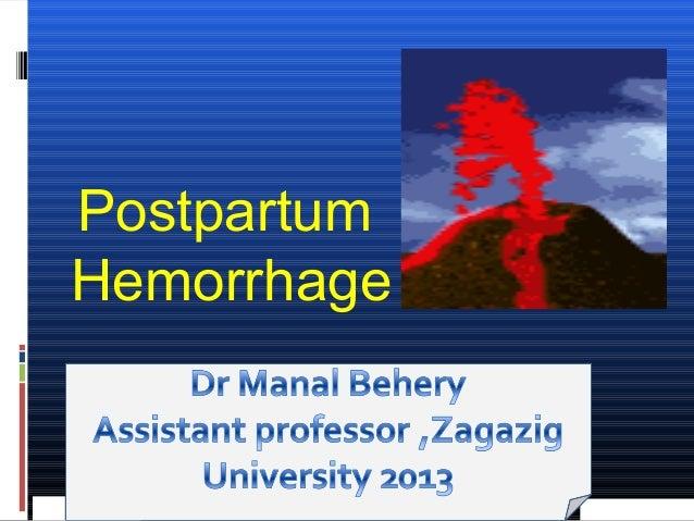 Postpartum hemorrhage for undergraduate