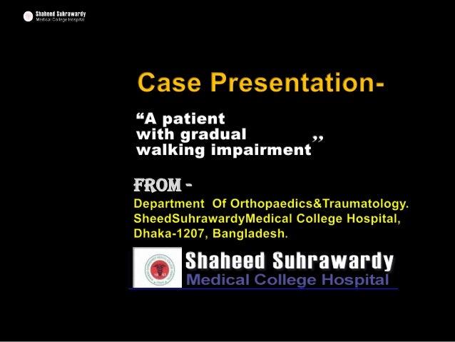 SPINAL TUBERCULOSIS / POTS' DISEASE- CASE-PRESENTATION-  At-Shaheed-Suhrawardy-Medical-College-Hospital-Dhaka-Bangladesh-