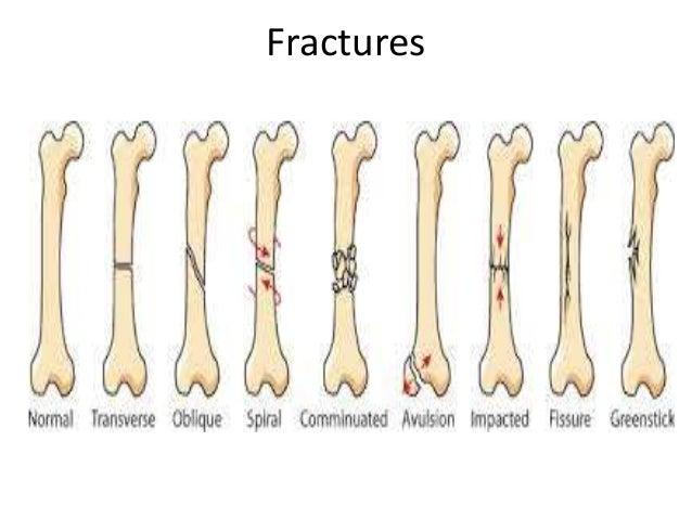 Types of fx