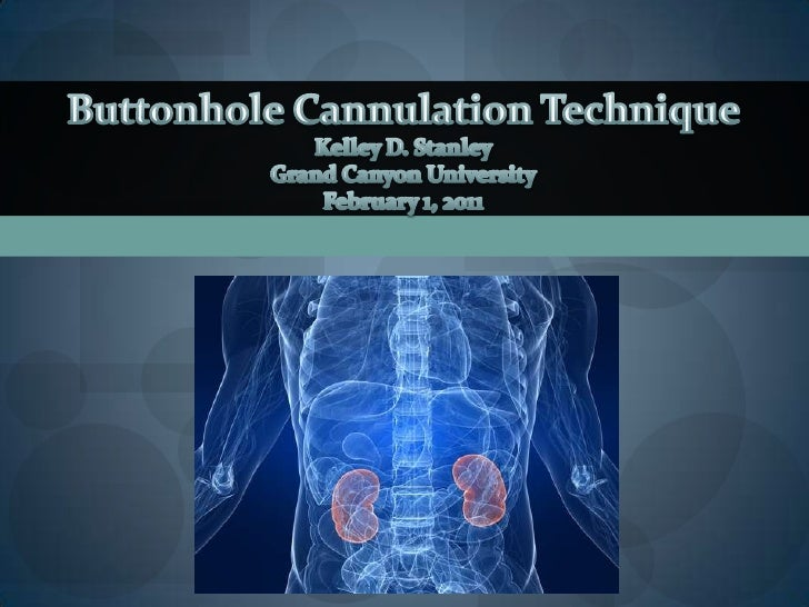 Buttonhole Cannulation Technique<br />Kelley D. Stanley<br />Grand Canyon University<br />February 1, 2011<br />