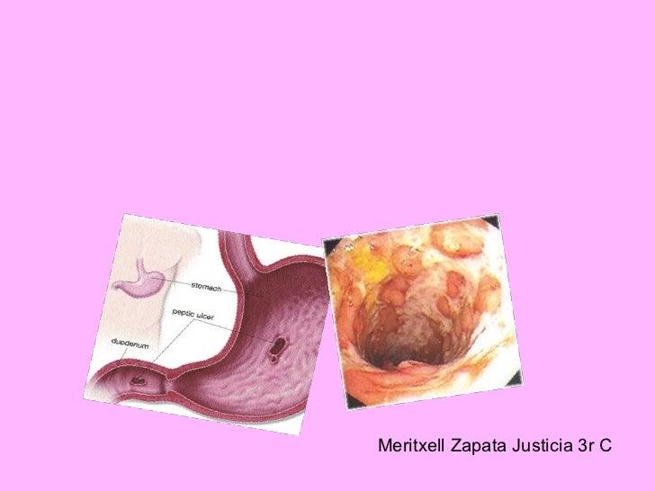 Meritxell Zapata Justicia 3r C