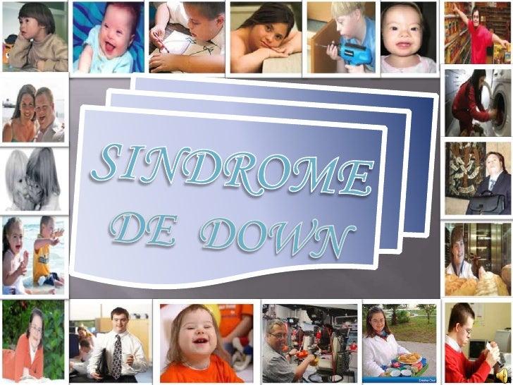 El síndrome de Down es una  alteración genética que se             produce       en el momento de la           concepción,...
