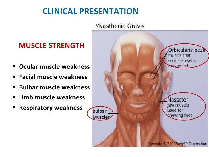myasthenia gravis treatment steroids