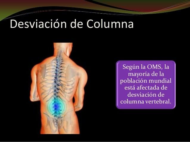 Según la OMS, la mayoría de la población mundial está afectada de desviación de columna vertebral. Desviación de Columna