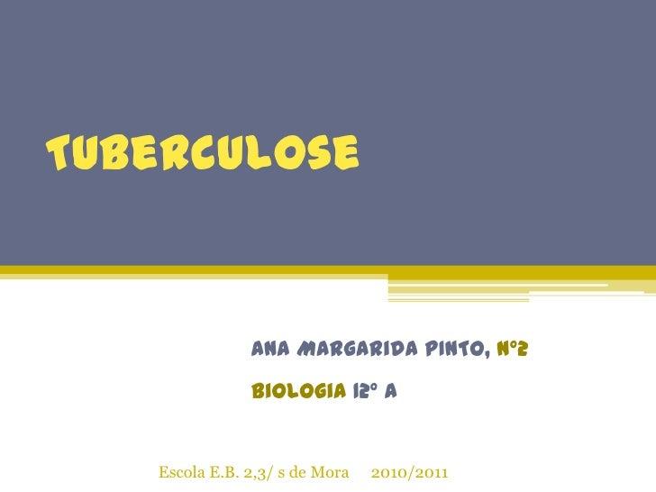 Tuberculose<br />Ana Margarida PINTO, Nº2<br />Biologia 12º A<br />Escola E.B. 2,3/ s de Mora     2010/2011<br />