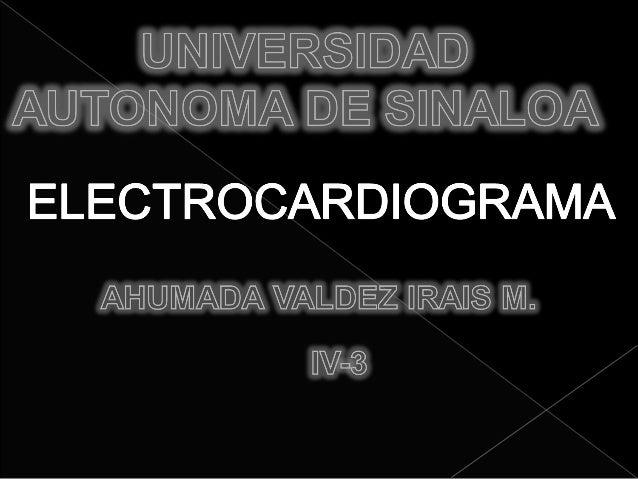ONDAS DEL ELECTROCARDIOGRAMA