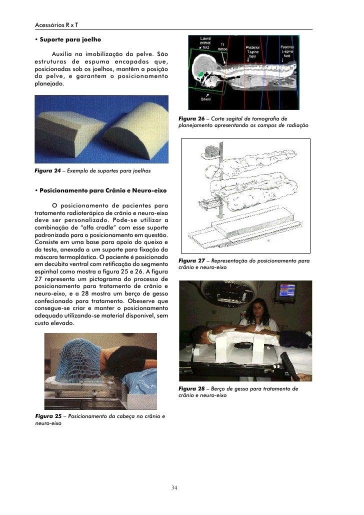 Acessórios R x T  • Suporte para joelho        Auxilia na imobilização da pelve. São estruturas de espuma encapadas que, p...