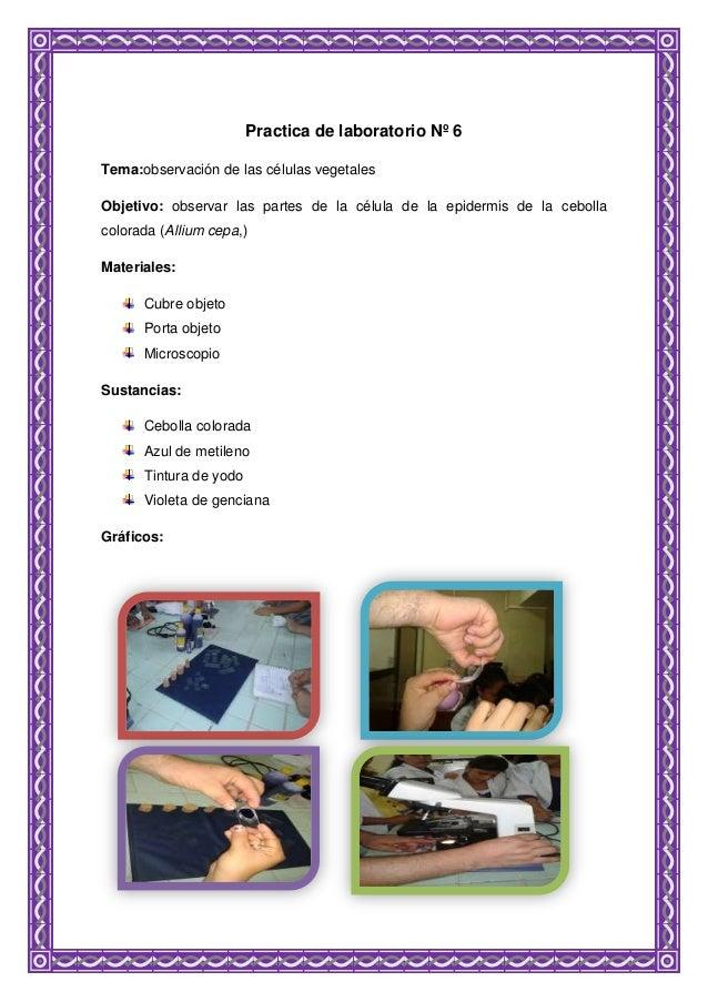 Practica de laboratorio Nº 6 Tema:observación de las células vegetales Objetivo: observar las partes de la célula de la ep...