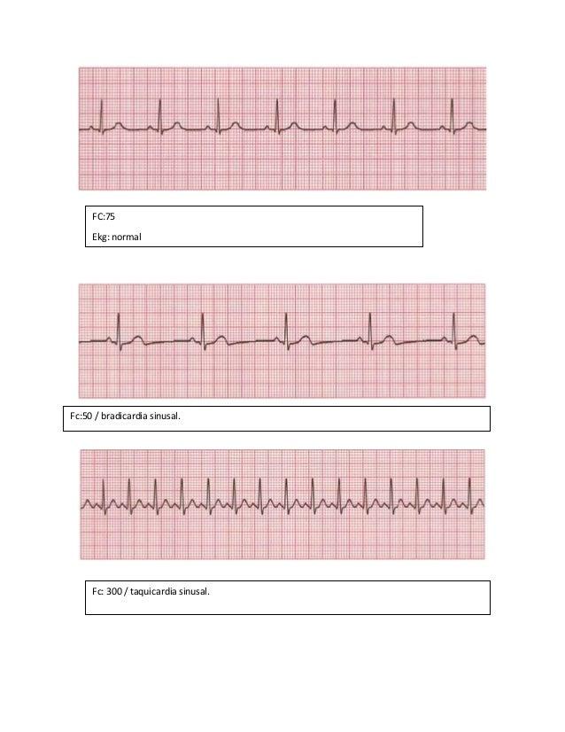electrocardiograma 1