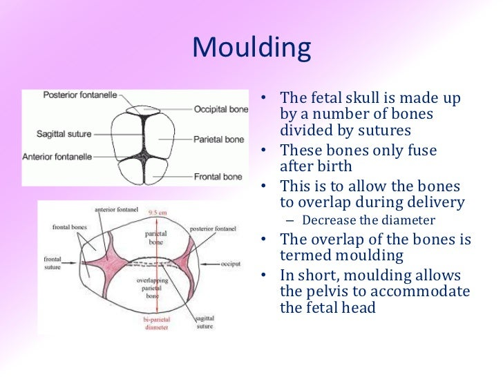 Fetal Skull Quiz Moulding • The Fetal Skull is