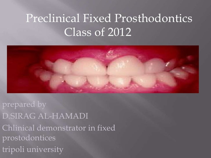 Preclinical Fixed Prosthodontics              Class of 2012prepared byD.SIRAG AL-HAMADIChlinical demonstrator in fixedpros...