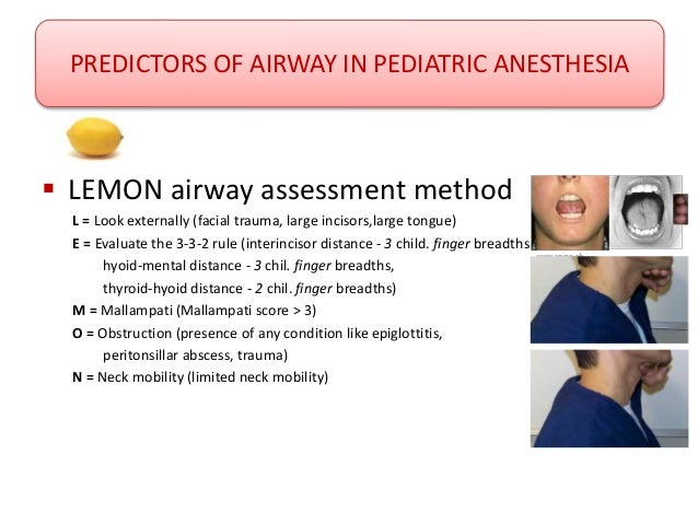 related keywords amp suggestions for lemon airway