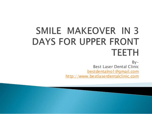 A COMPLETE SMILE MAKEOVER IN 3 DAYS FOR UPPER FRONT TEETH ppt