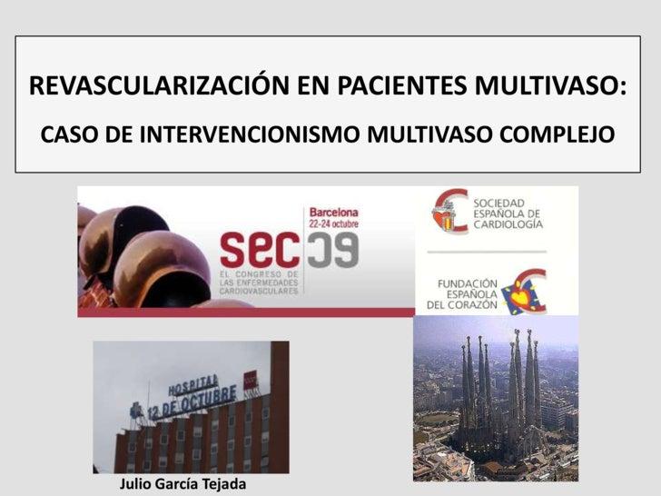 Dr. Julio García Tejada. Revascularización en pacientes multivaso.