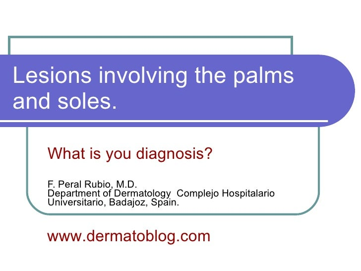 Lesions involving the palms and soles. What is you diagnosis? F. Peral Rubio, M.D. Department of Dermatology  Complejo Hos...