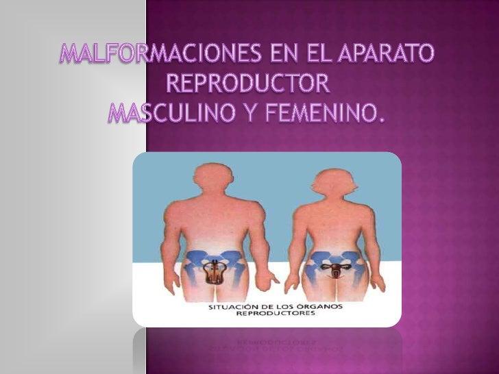 MALFORMACIONES EN EL APARATO REPRODUCTOR <br />MASCULINO Y FEMENINO.<br />