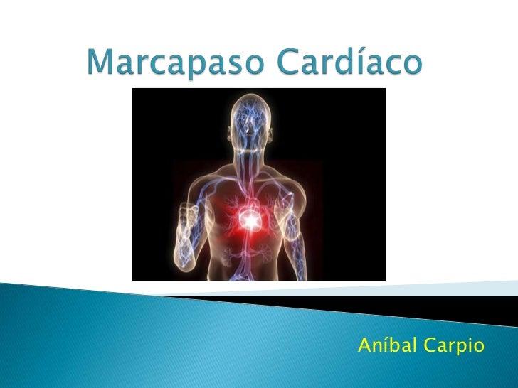 Aníbal Carpio