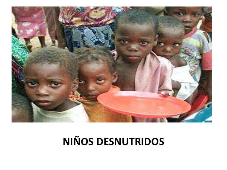 NIÑOS DESNUTRIDOS